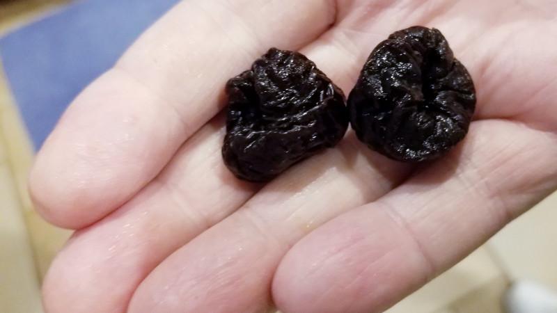 Назван сухофрукт, уменьшающий риск развития рака кишечника