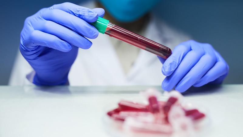 Испытания революционного теста на рак начались в Великобритании